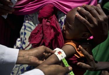 La ayuda humanitaria no acabará con el hambre